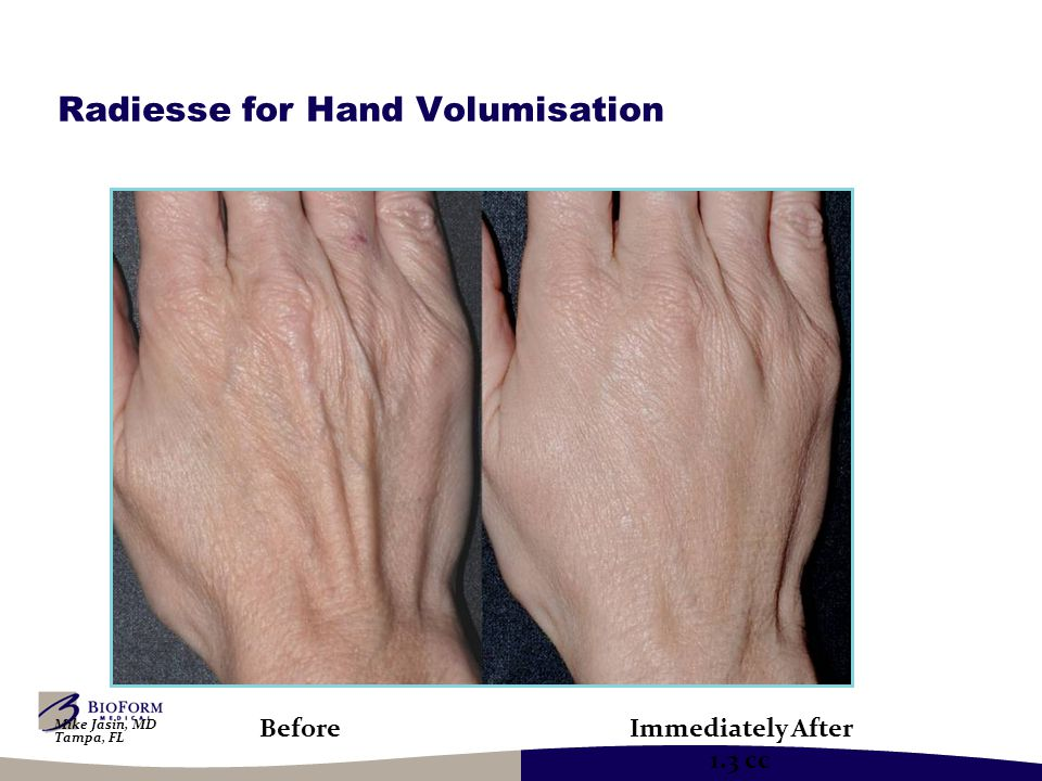 Radiesse for Hand Volumisation BeforeImmediately After 1.3 cc Mike Jasin, MD Tampa, FL