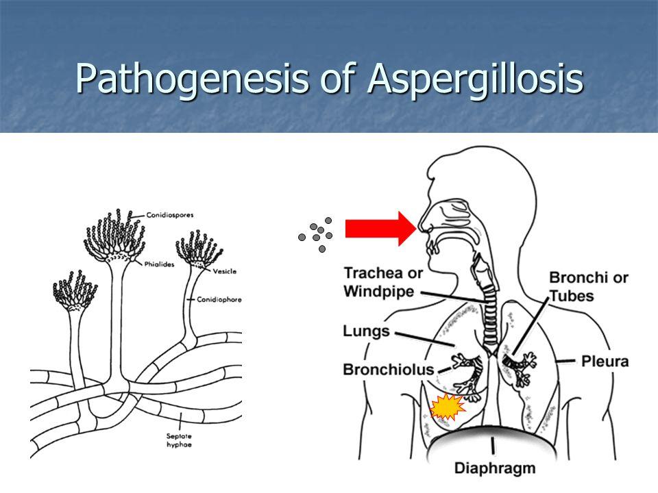 Pathogenesis of Aspergillosis