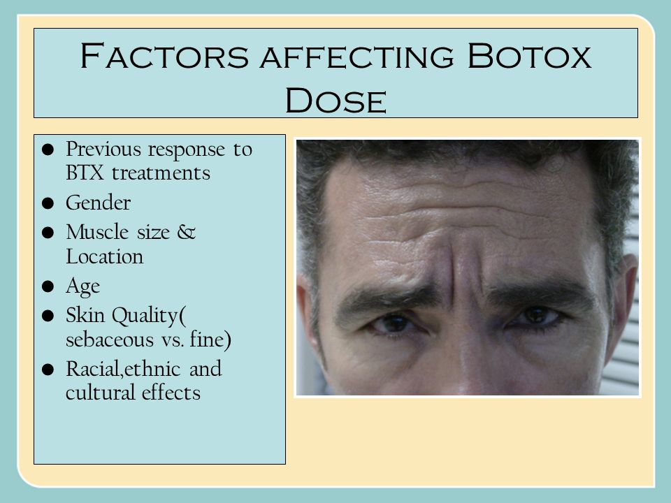Factors affecting Botox Dose Previous response to BTX treatments Gender Muscle size & Location Age Skin Quality( sebaceous vs.