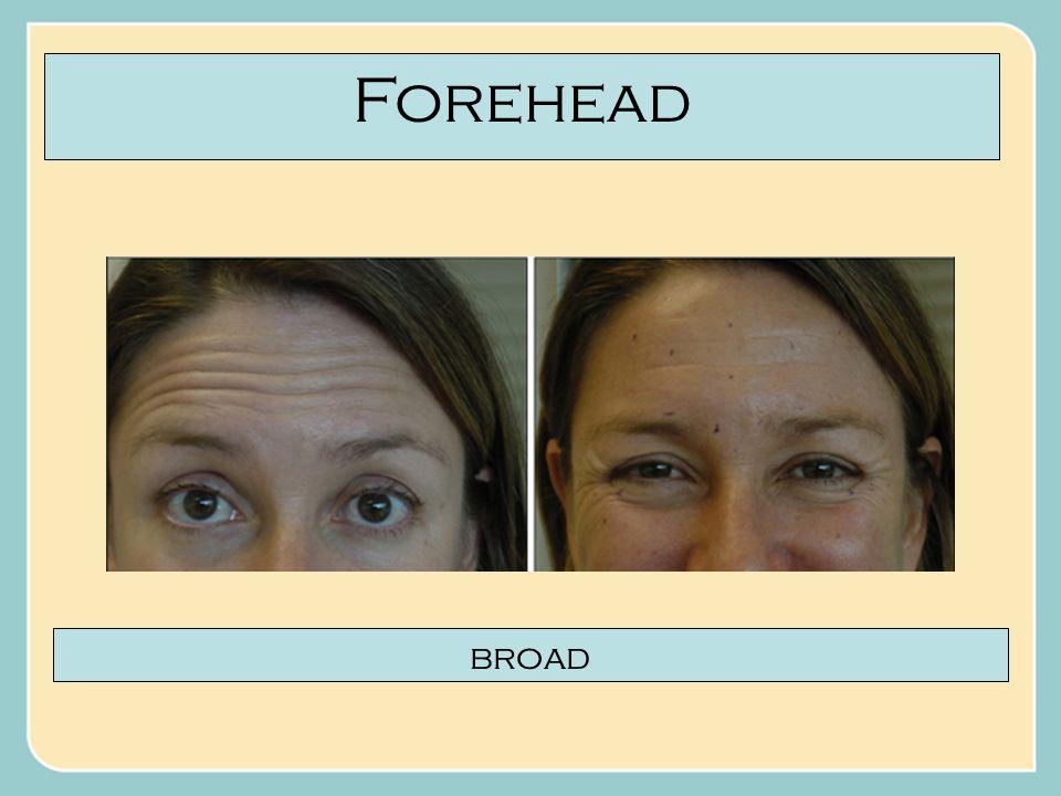 Forehead broad