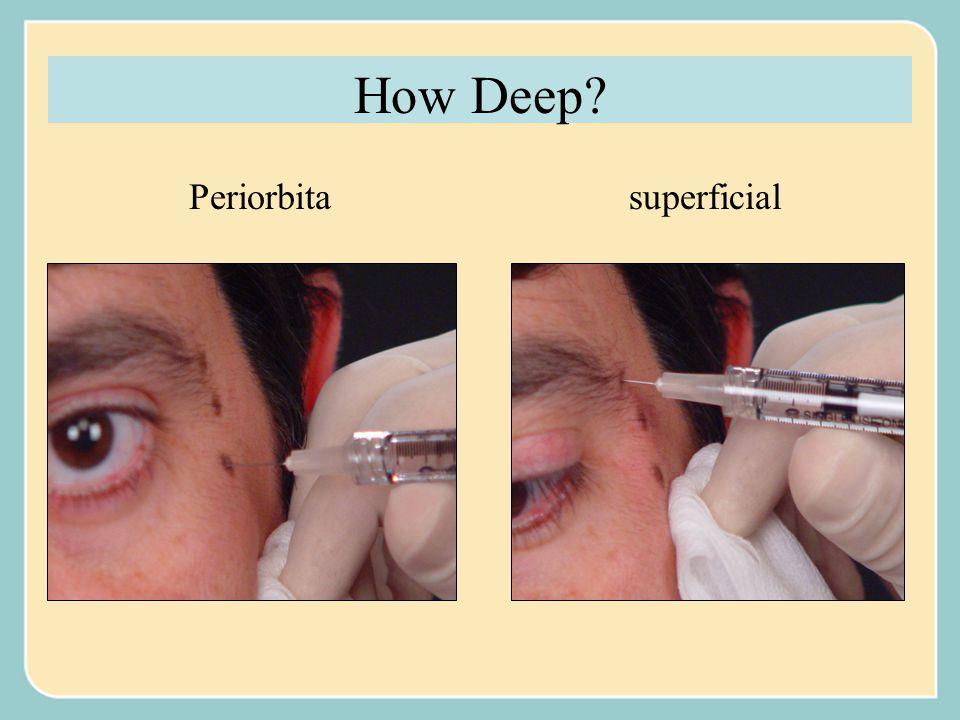 How Deep Periorbita superficial
