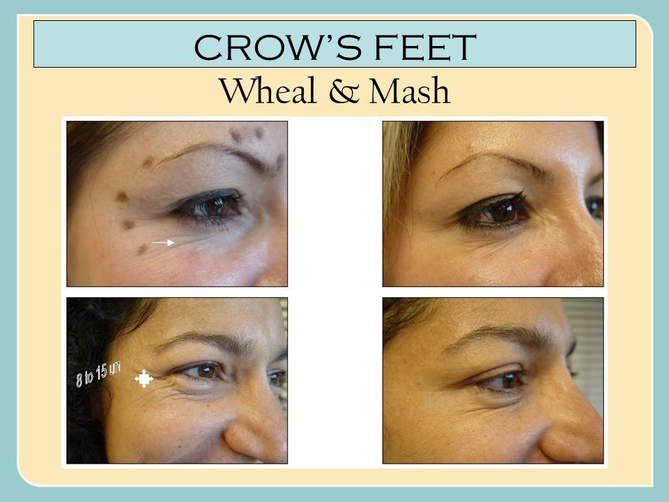 CROW'S FEET Wheal & Mash