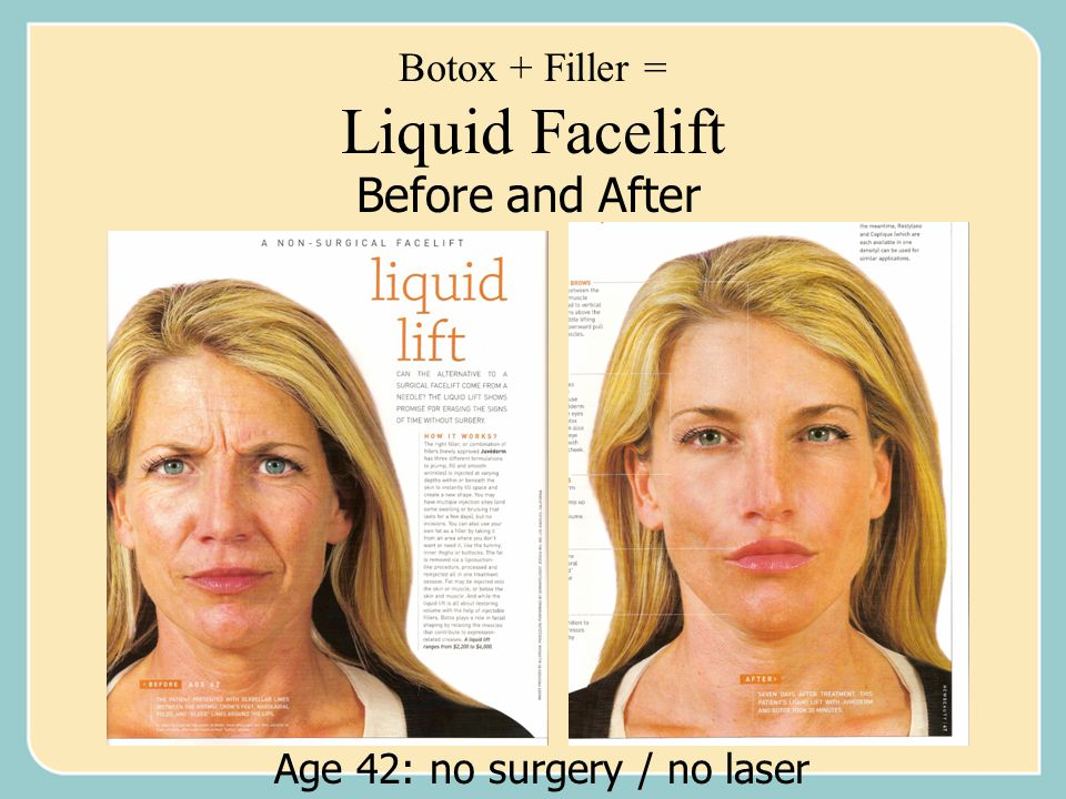 Botox + Filler = Liquid Facelift Age 42: no surgery / no laser Before and After