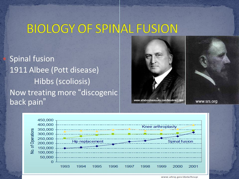 """Spinal fusion 1911 Albee (Pott disease) Hibbs (scoliosis) Now treating more """"discogenic back pain"""" www.srs.org www.allaboutsarasota.com/timeline2.htm"""