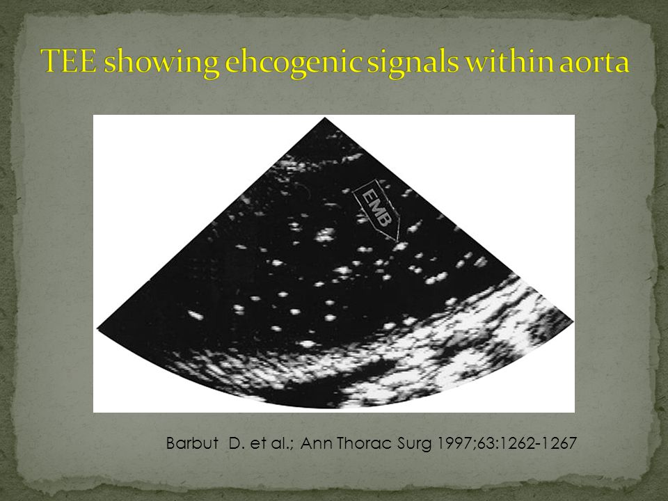 Barbut D. et al.; Ann Thorac Surg 1997;63:1262-1267
