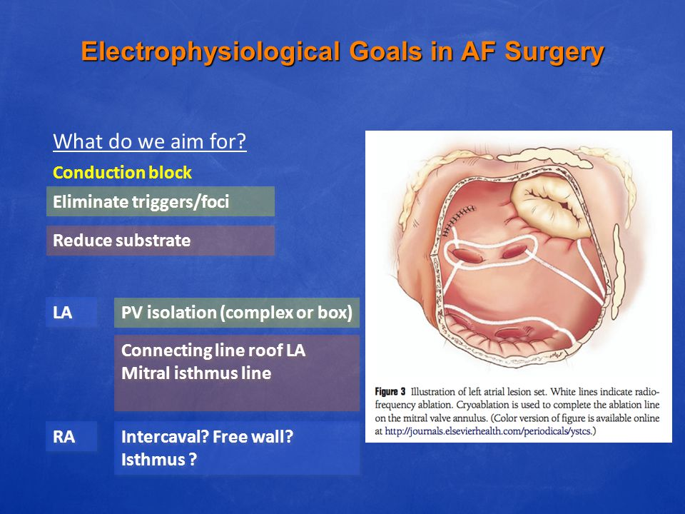 Electrophysiological Goals in AF Surgery What do we aim for? Conduction block Eliminate triggers/foci PV isolation (complex or box) Reduce substrate C
