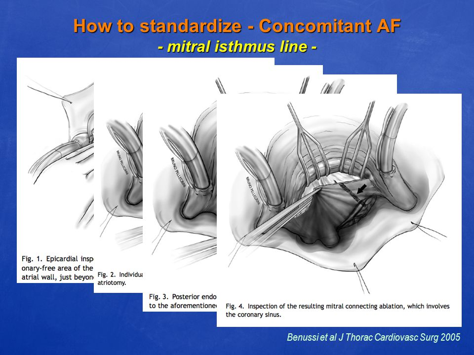 How to standardize - Concomitant AF - mitral isthmus line - Benussi et al J Thorac Cardiovasc Surg 2005