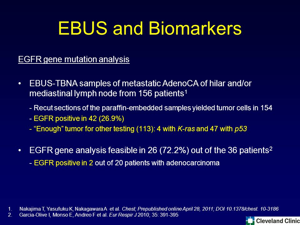 EBUS and Biomarkers EGFR gene mutation analysis EBUS-TBNA samples of metastatic AdenoCA of hilar and/or mediastinal lymph node from 156 patients 1 - Recut sections of the paraffin-embedded samples yielded tumor cells in 154 - EGFR positive in 42 (26.9%) - Enough tumor for other testing (113): 4 with K-ras and 47 with p53 EGFR gene analysis feasible in 26 (72.2%) out of the 36 patients 2 - EGFR positive in 2 out of 20 patients with adenocarcinoma 1.Nakajima T, Yasufuku K, Nakagawara A et al.