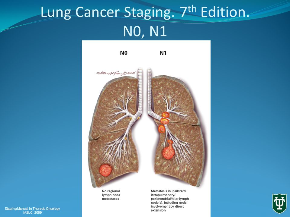 Lung Cancer Staging. 7 th Edition. N0, N1 Staging Manual In Thoracic Oncology IASLC. 2009