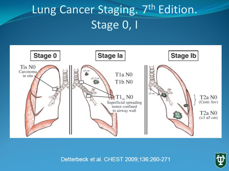 Lung Cancer Staging. 7 th Edition. Stage 0, I Detterbeck et al. CHEST 2009;136: