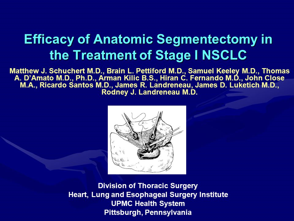 Efficacy of Anatomic Segmentectomy in the Treatment of Stage I NSCLC Matthew J.