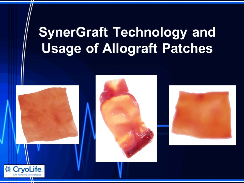 SynerGraft Technology and Usage of Allograft Patches