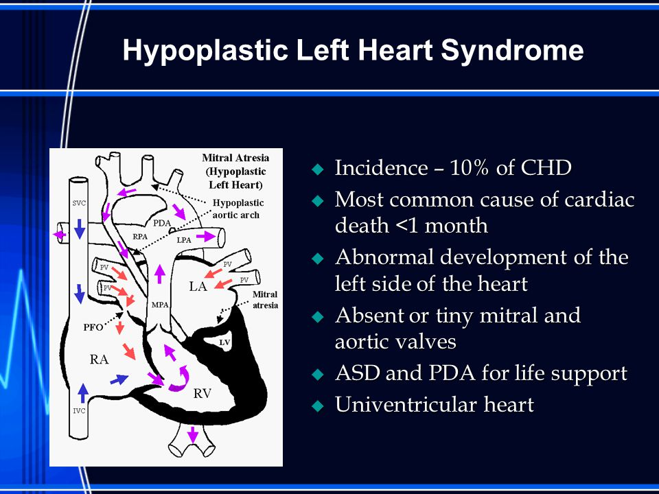 Hypoplastic Left Heart Syndrome u Incidence – 10% of CHD u Most common cause of cardiac death <1 month u Abnormal development of the left side of the heart u Absent or tiny mitral and aortic valves u ASD and PDA for life support u Univentricular heart