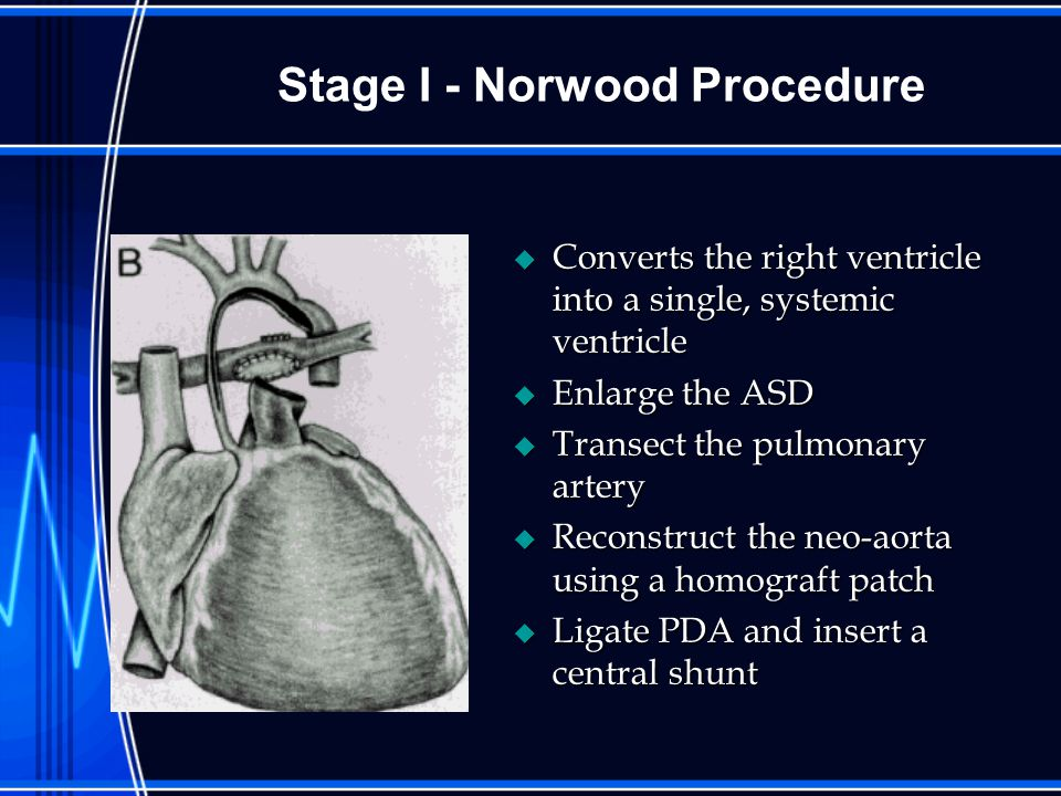Stage I - Norwood Procedure u Converts the right ventricle into a single, systemic ventricle u Enlarge the ASD u Transect the pulmonary artery u Reconstruct the neo-aorta using a homograft patch u Ligate PDA and insert a central shunt