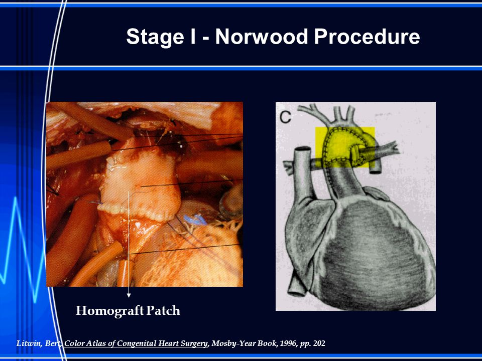 Stage I - Norwood Procedure Homograft Patch Litwin, Bert, Color Atlas of Congenital Heart Surgery, Mosby-Year Book, 1996, pp.