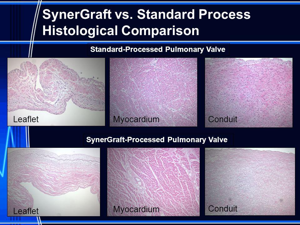 SynerGraft vs. Standard Process Histological Comparison Standard-Processed Pulmonary Valve SynerGraft-Processed Pulmonary Valve Leaflet MyocardiumCond
