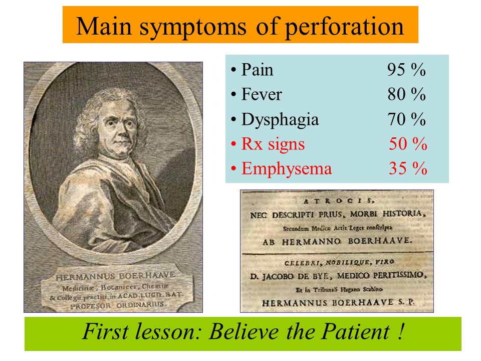 First lesson: Believe the Patient ! Pain 95 % Fever 80 % Dysphagia 70 % Rx signs 50 % Emphysema 35 % Main symptoms of perforation