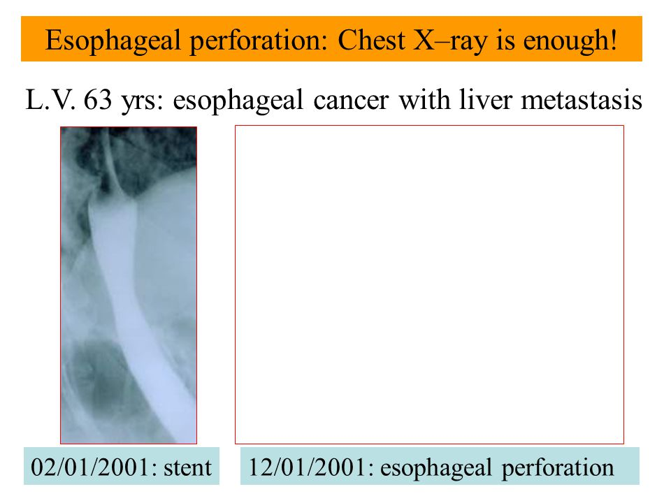 Esophageal perforation: Chest X–ray is enough! 02/01/2001: stent L.V. 63 yrs: esophageal cancer with liver metastasis 12/01/2001: esophageal perforati