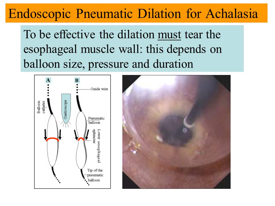 Endoscopic Pneumatic Dilation for Achalasia To be effective the dilation must tear the esophageal muscle wall: this depends on balloon size, pressure