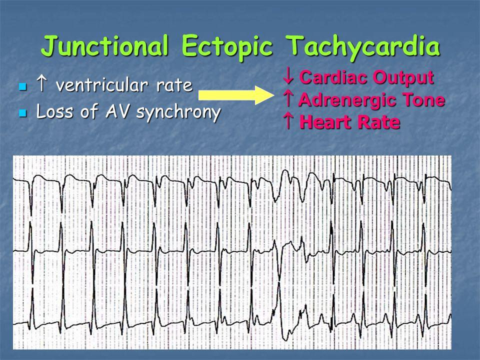 Junctional Ectopic Tachycardia  ventricular rate  ventricular rate Loss of AV synchrony Loss of AV synchrony  Cardiac Output  Adrenergic Tone  Heart Rate