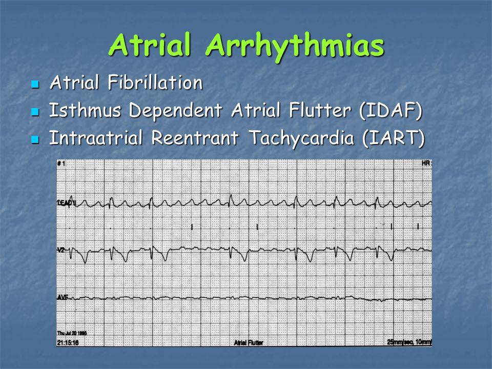 Atrial Arrhythmias Atrial Fibrillation Atrial Fibrillation Isthmus Dependent Atrial Flutter (IDAF) Isthmus Dependent Atrial Flutter (IDAF) Intraatrial Reentrant Tachycardia (IART) Intraatrial Reentrant Tachycardia (IART)