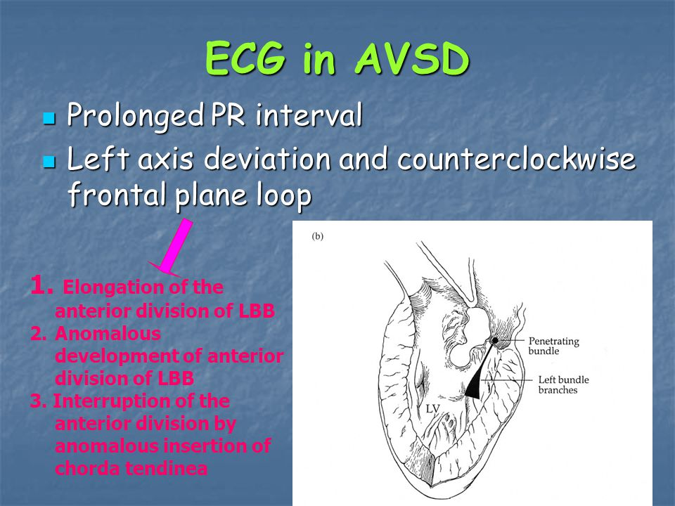 ECG in AVSD Prolonged PR interval Prolonged PR interval Left axis deviation and counterclockwise frontal plane loop Left axis deviation and counterclockwise frontal plane loop 1.