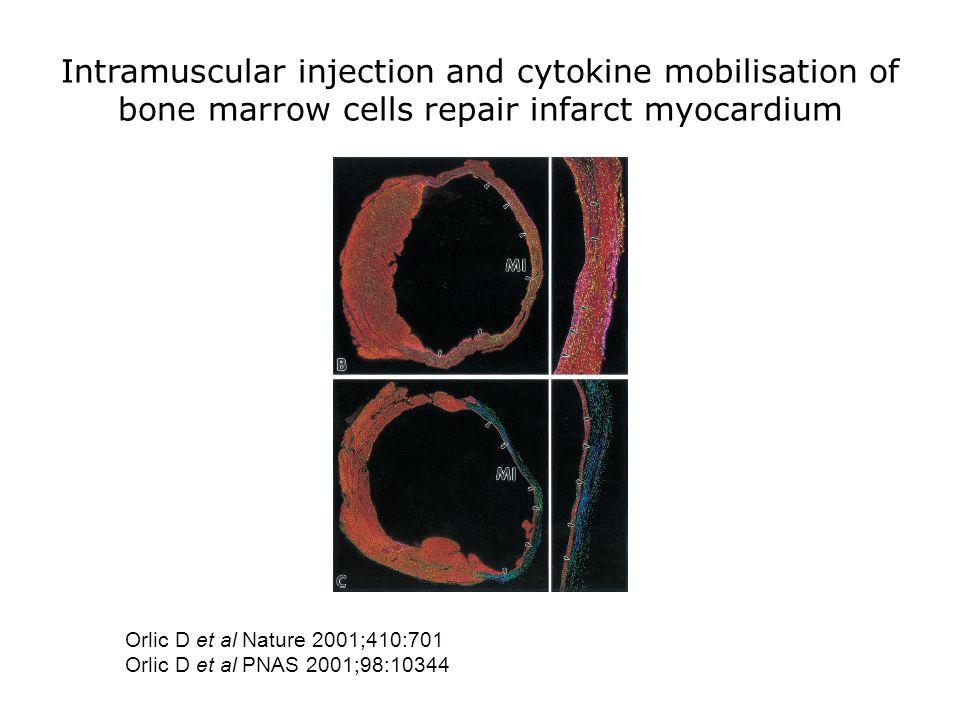 Intramuscular injection and cytokine mobilisation of bone marrow cells repair infarct myocardium Orlic D et al Nature 2001;410:701 Orlic D et al PNAS 2001;98:10344