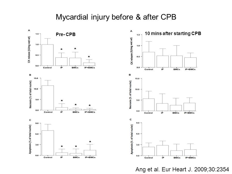 Mycardial injury before & after CPB Pre- CPB 10 mins after starting CPB Ang et al.