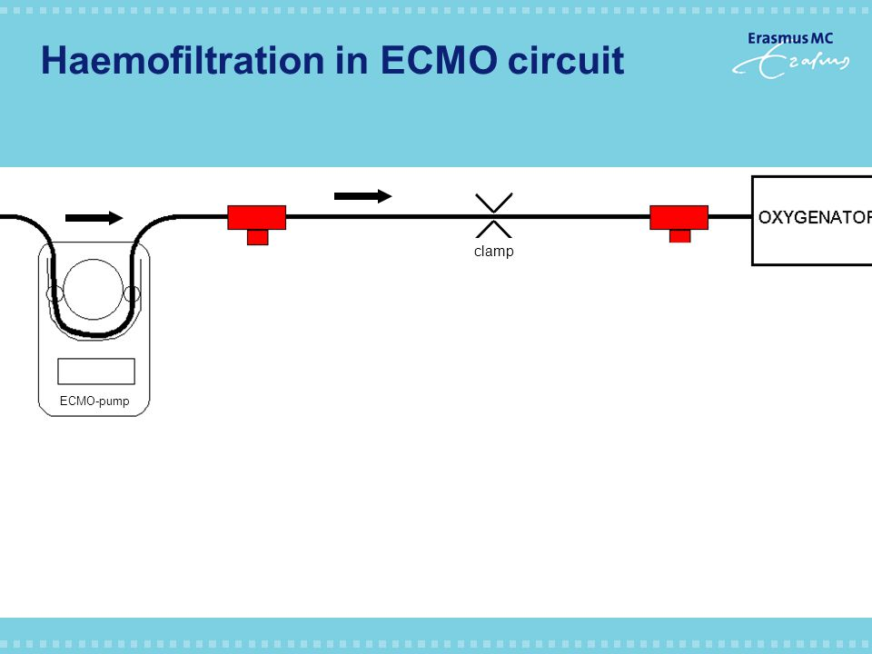 Haemofiltration in ECMO circuit ECMO-pump clamp