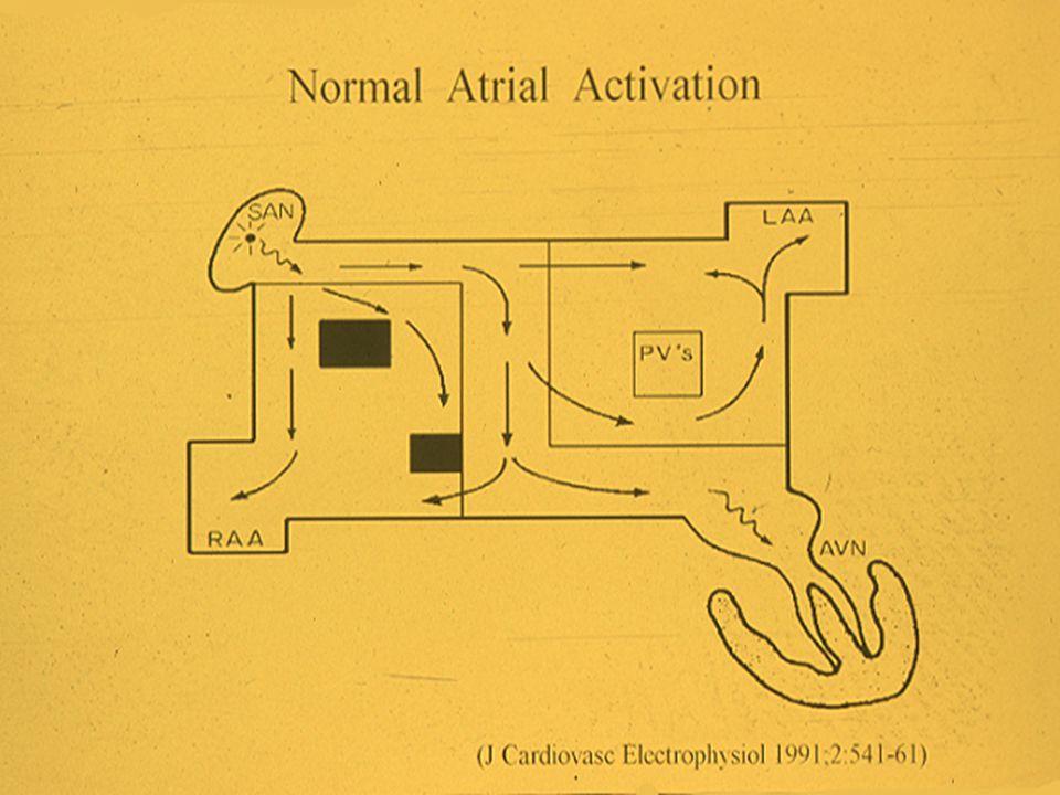 Rationale of the Cox Maze Procedure for Atrial Fibrillation During Redo Mitral Valve Operations Kobayashi J, Kosakai Y, Isobe F, et al J Thorac Cardiovasc Surg 1996;112:1216-22
