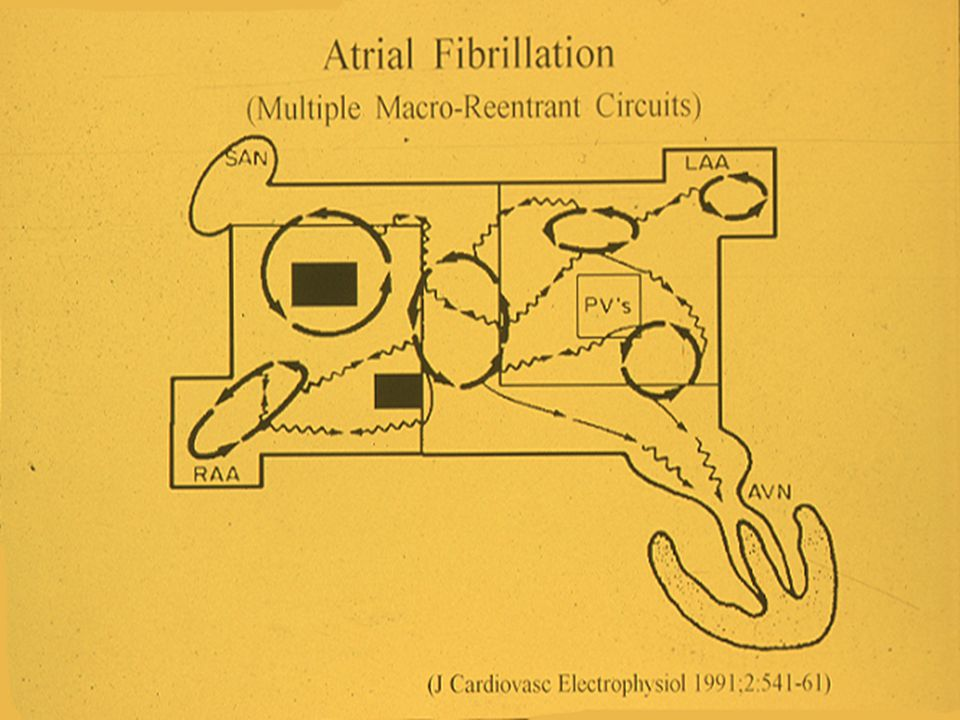 Restoration of Atrial Function After the Maze Procedure for Patients with Atrial Fibrillation ; Assessment by Doppler Echocardiography Feinberg MS, et al Circulation 1994;5 (pt II):II-285-92