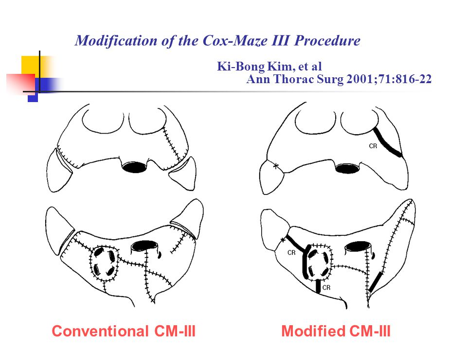 The Outcome and Indications of the Cox Maze III Procedure for Chronic Atrial Fibrillation With Mitral Valve Disease Isobe F, et al J Thorac Cardiovasc Surg 1998;116:220-7