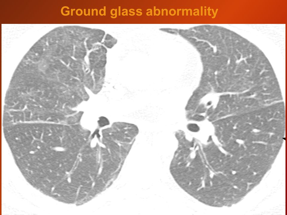 Ground glass abnormality