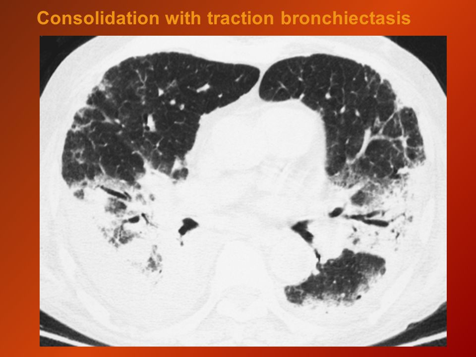 Consolidation with traction bronchiectasis