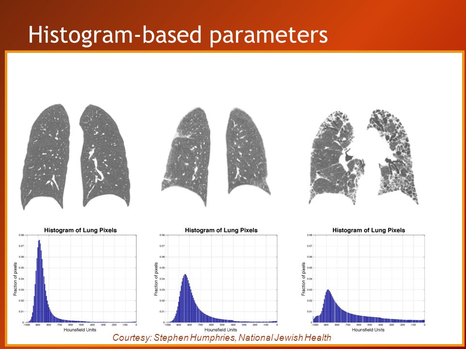 Histogram-based parameters Courtesy: Stephen Humphries, National Jewish Health