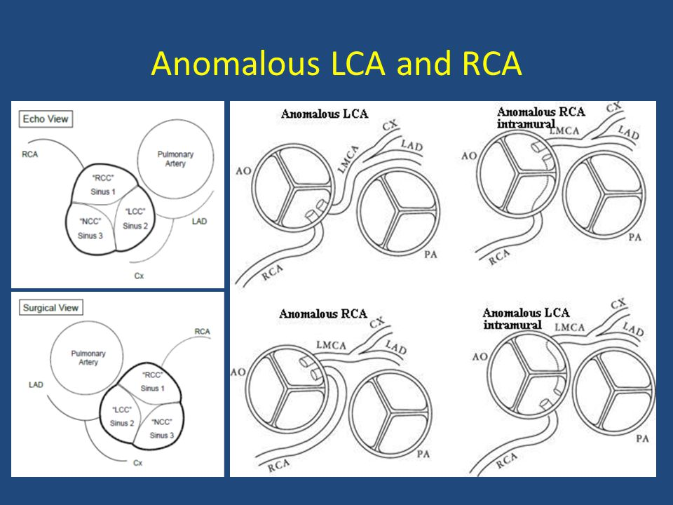 Anomalous LCA and RCA