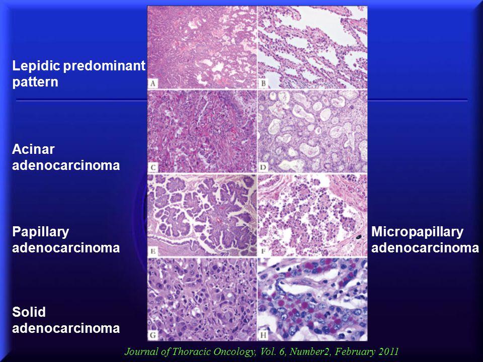 Lepidic predominant pattern Acinar adenocarcinoma Papillary adenocarcinoma Solid adenocarcinoma Micropapillary adenocarcinoma Journal of Thoracic Onco