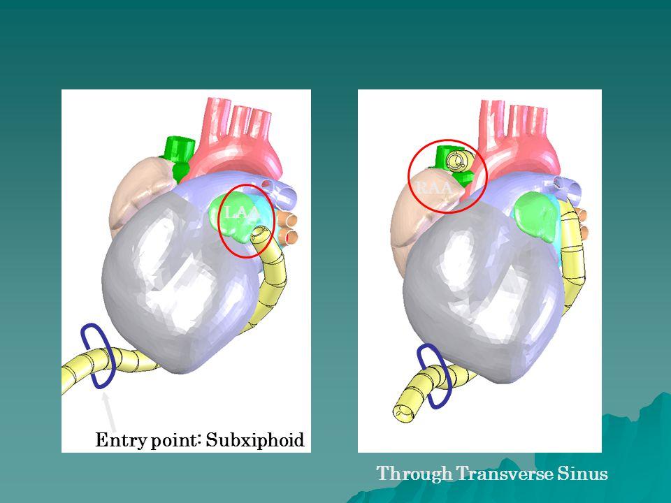 LAA RAA Through Transverse Sinus Entry point: Subxiphoid