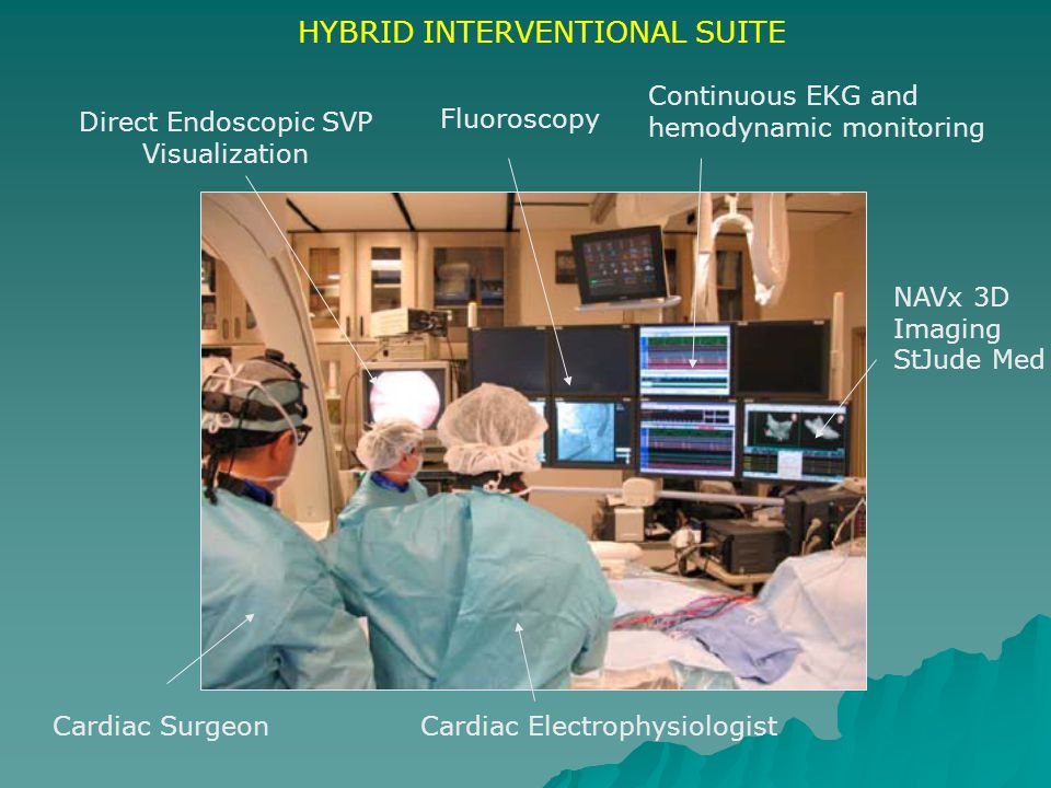 Cardiac SurgeonCardiac Electrophysiologist Direct Endoscopic SVP Visualization Fluoroscopy Continuous EKG and hemodynamic monitoring NAVx 3D Imaging S