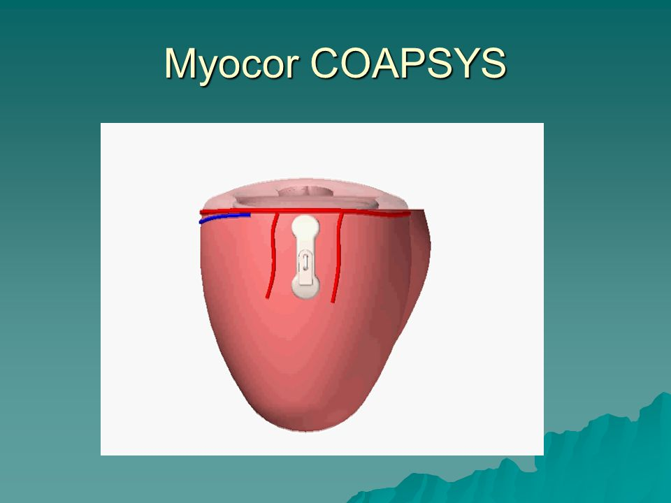 Myocor COAPSYS