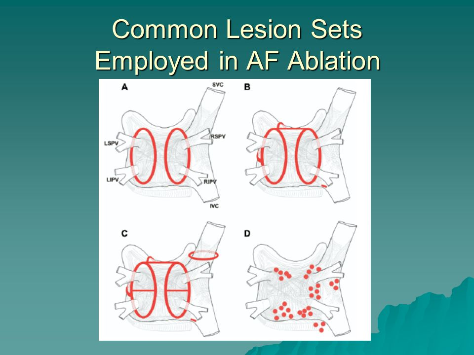 Common Lesion Sets Employed in AF Ablation