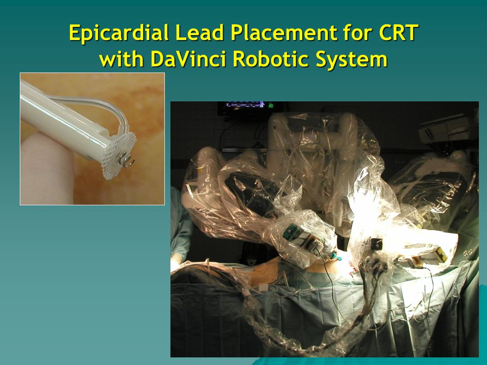 Epicardial Lead Placement for CRT with DaVinci Robotic System