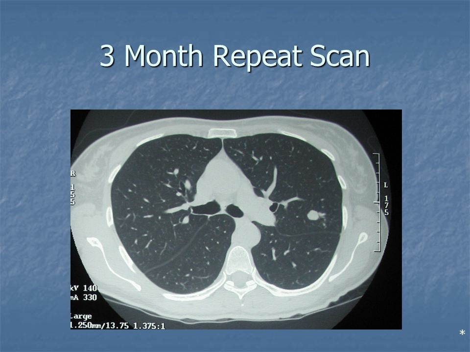 3 Month Repeat Scan *