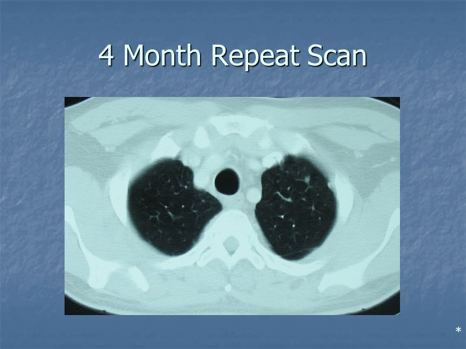 4 Month Repeat Scan *