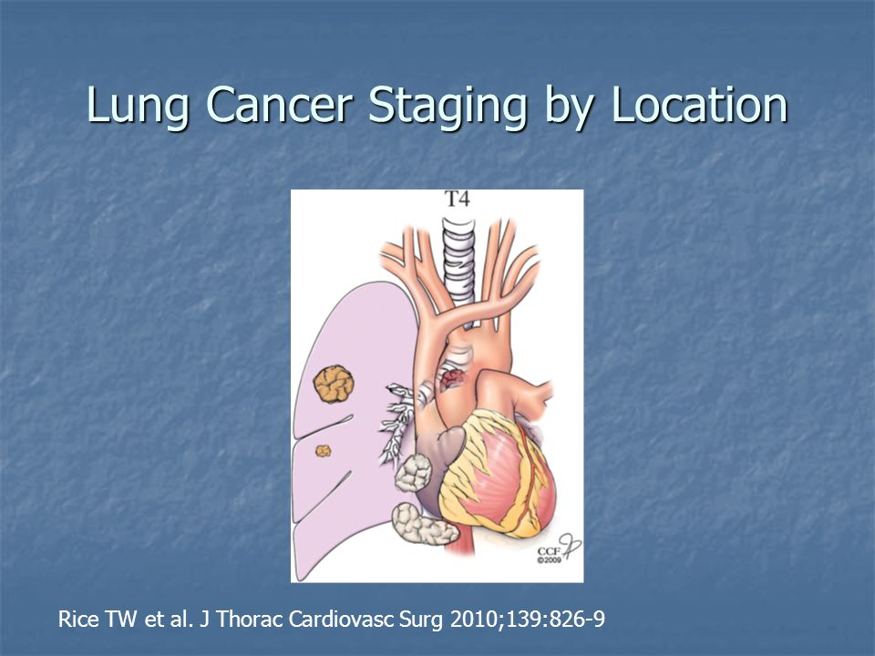 Lung Cancer Staging by Location