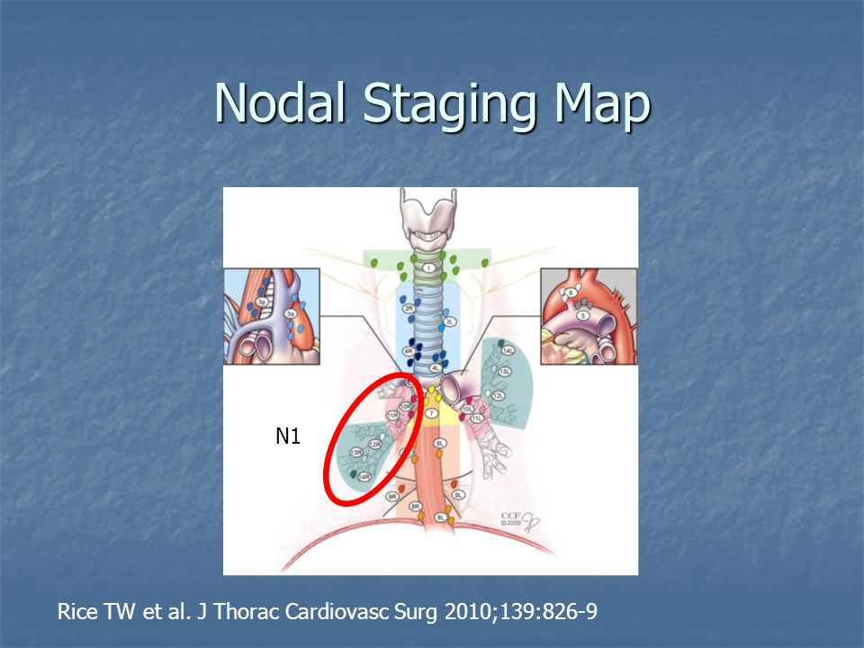 Nodal Staging Map Rice TW et al. J Thorac Cardiovasc Surg 2010;139:826-9 N1