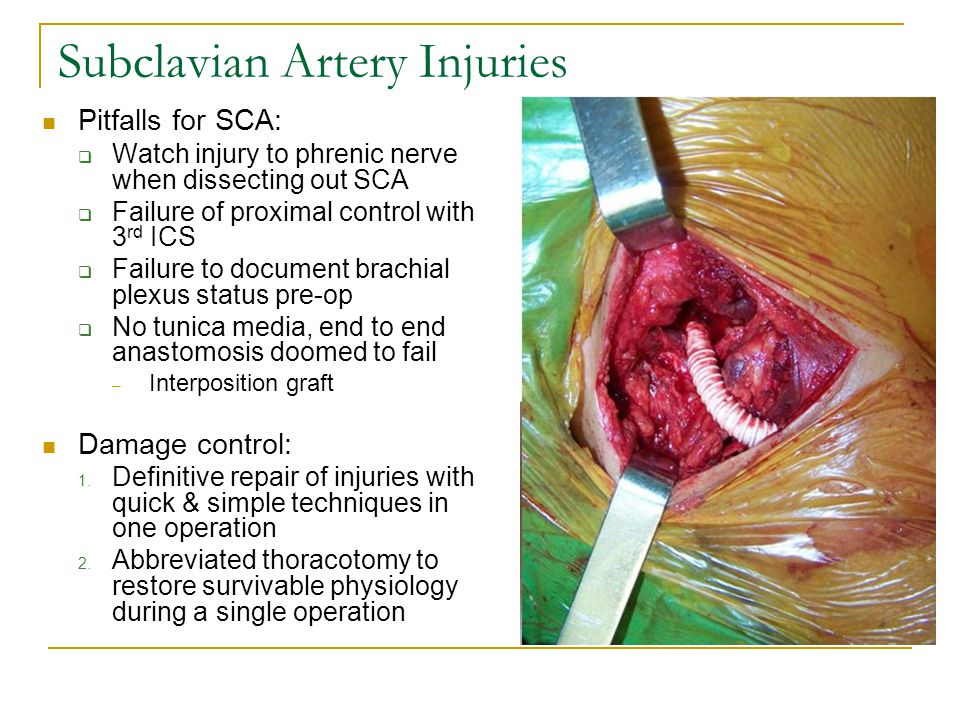 Subclavian Artery Injuries Pitfalls for SCA:  Watch injury to phrenic nerve when dissecting out SCA  Failure of proximal control with 3 rd ICS  Fai