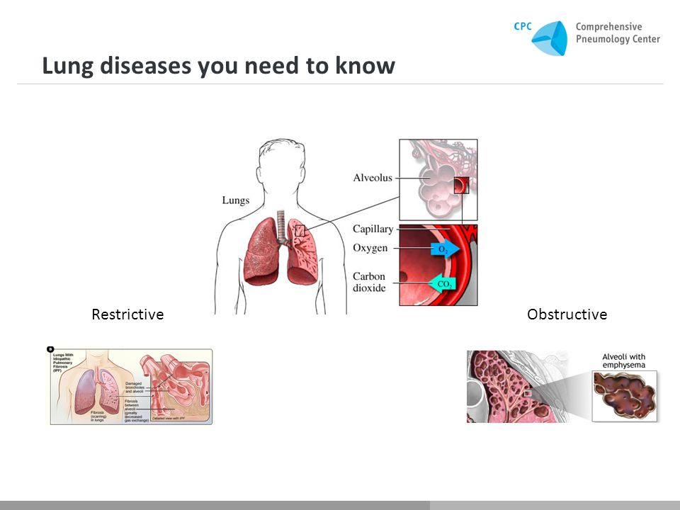 Lung diseases you need to know RestrictiveObstructive