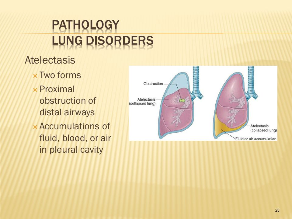 28 Atelectasis  Two forms  Proximal obstruction of distal airways  Accumulations of fluid, blood, or air in pleural cavity