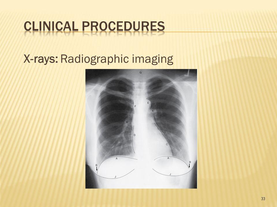 33 X-rays: Radiographic imaging